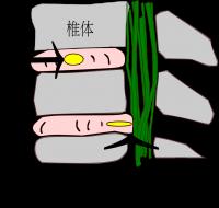 椎間板から髄核が飛び出している